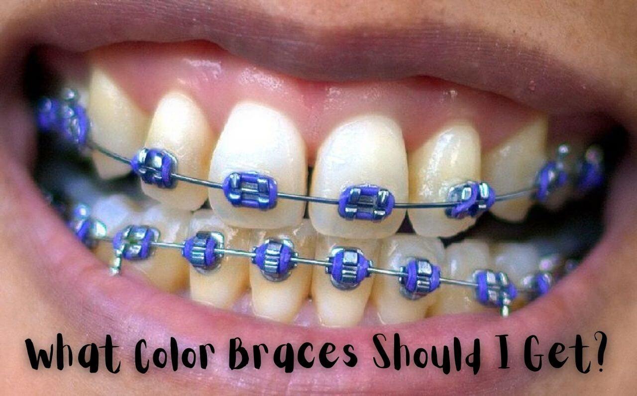 what color braces should I get quiz
